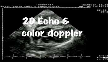 2D ECHO/Colour Doppler Ivory Hospitals